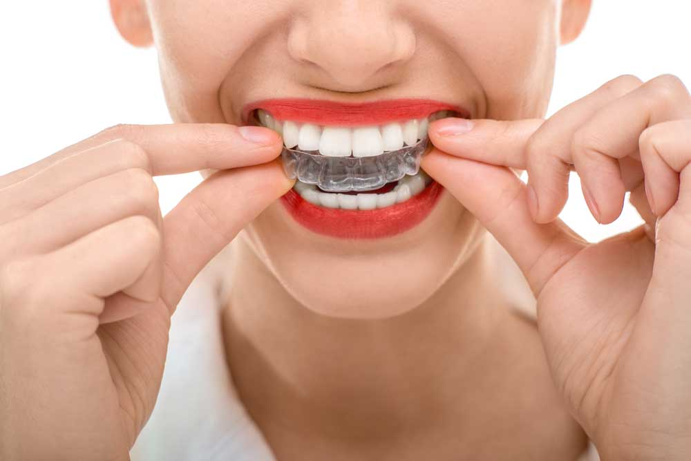 Mouthguards - Riverdale Dentist | Dr. Taller Dental Family Practice in Bronx, NY