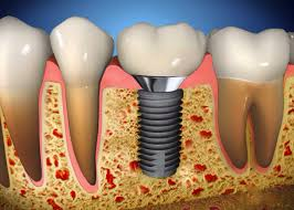 Implant Surgery - Riverdale Dentist | Dr. Taller Dental Family Practice in Bronx, NY